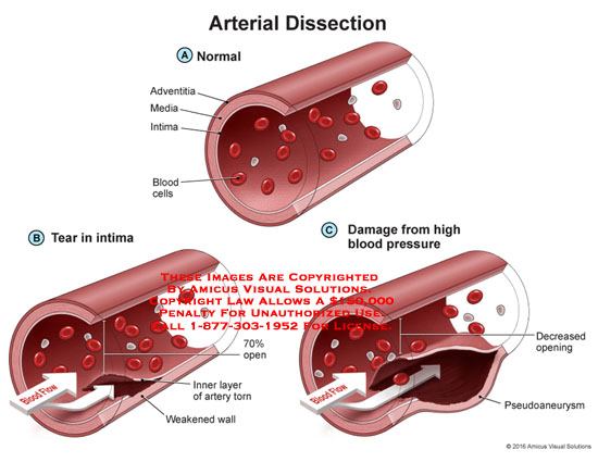 amicus,medical,arterial,dissection,adventitia,media,intima,blood,cells,tear,flow,weakened,wall,torn,artery,70%,open,decreased,opening,pseudoaneurysm,high,blood,pressure,damage