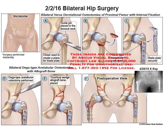 amicus,surgery,bilateral,hip,varus,derotational,osteotomies,proximal,femur,internal,fixation,guide,pin,femoral,neck,chisel,plane,blade,plate,dega-type,varus-type,acetabular,osteotomy,tricortical,wedge,allograft,bone,postoperative,view,x-ray
