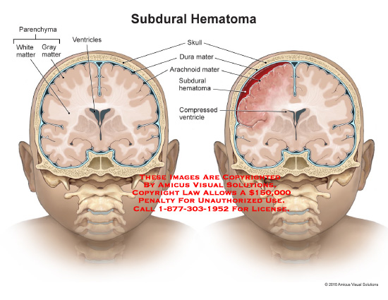amicus,injury,subdural,hematoma,skull,dura,mater,arachnoid,mater,compressed,ventricle,gray,matter,white,parenchyma