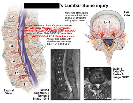 amicus,injury,lumbar,spine,annular,disc,bulges,l1,l2,l3,l4,l5,s1,narrowing,affects,spinal,nerves,ct,sagittal,axial