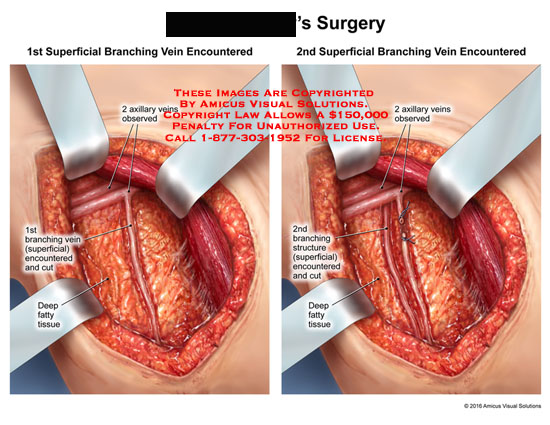 amicus,surgery,superficial,branching,vein,encountered,1st,2nd,observed,axillary,cut,deep,fatty,tissue