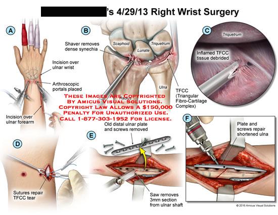 amicus,surgery,wrist,incision,ulnar,forearm,arthroscopic,portals,placed,shaver,removes,dense,synechia,scaphoid,lunate,triquetrum,ulna,radius,tfcc,triangular,fibro-cartilage,complex,inflamed,tissue,debrided,suture,repair,distal,plate,screws,saw,shaft,shortened
