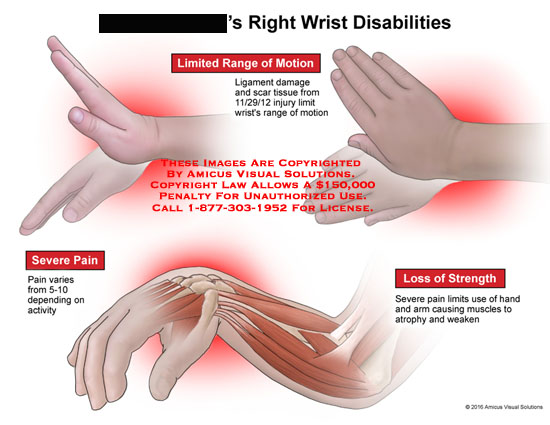 amicus,injury,disabilities,limited,range,motion,severe,pain,loss,strength,ligament,damage,scar,tissue,activity,hand,arm,muscles,atrophy,weaken