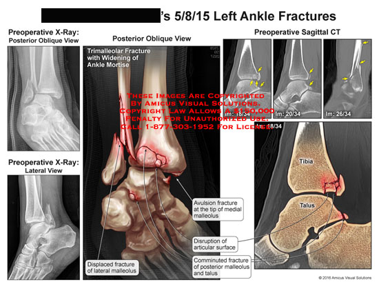 amicus,injury,ankle,fracture,preoperative,x-ray,posterior,oblique,lateral,displaced,malleolus,avulsion,medial,disruption,articular,surface,communited,talus,tibia,ct