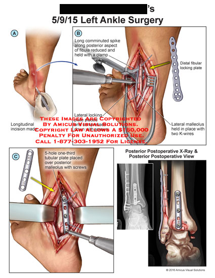 amicus,surgery,ankle,logitudinal,invision,communited,spike,posterior,fibula,reduced,clamp,lateral,locking,plate,compressed,screw,distal,fibular,locking,malleolus,k-wire,5-hole,tubular,postoperative,x-ray