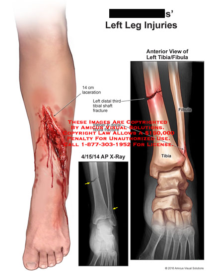 amicus,injuries,leg,laceration,distal,third,tibial,shaft,fracture,weber,fibula,fractue,x-ray,anterior