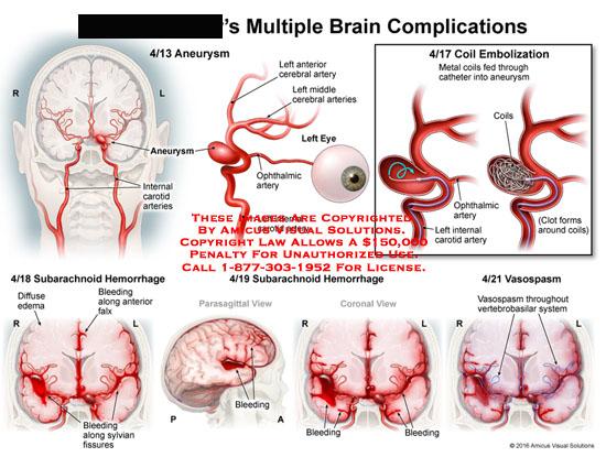 amicus,medical,multiple,brain,complications,aneurysm,carotid,arteries,internal,left,anterior,cerebral,artery,middle,cerebral,eye,opthalmic,metalcoils,catheter,coil,embolization,clot,diffuse,edema,subarachnoid,hemorrhage,falx,bleeding,sylvian,fissures,vasospasm,vertebrobasilar,system