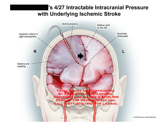 amicus,injury,brain,head,intracranial,pressure,intractable,ischemic,stroke,edema,swelling,infarct,hemisphere,ventriculostomy,midline,shift,ventricles,obliterated