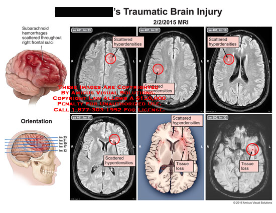 amicus,injury,head,brain,traumatic,subarachnoid,hemorrhage,scattered,frontal,sulci,hyperdensities,tissue,loss,mri