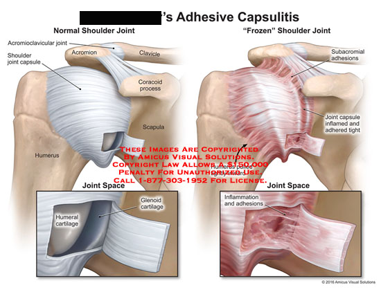 amicus,injury,comparison,normal,frozen,shoulder,joint,adhesive,capsulitis,clavicle,acromioclavicular,capsule,acromion,coracoid,process,scapula,humerus,space,humeral,glenoid,cartilage,subacromial,adhesions,inflamed,adhered,tight,pulled,inward