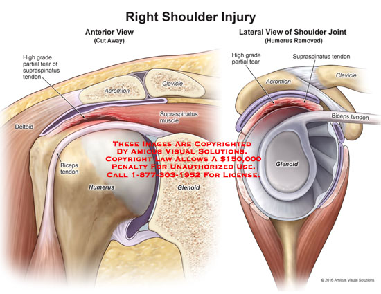 amicus,injury,shoulder,joint,anterior,lateral,view,humerus,supraspinatus,muscle,biceps,tendon,deltoid,clavicle,acromion,glenoid,high,grade,partial,tear