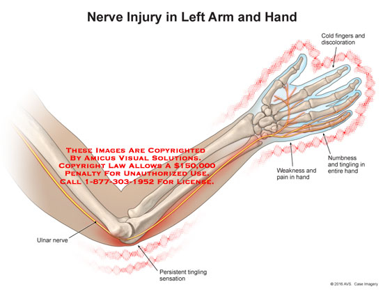 nerve injury in left arm and handleft arm recorded channels sensors