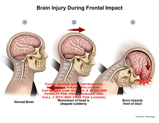 amicus,injury,sequence,head,brain,skull,frontal,impact,car,vehicle,collision,momentum,stopped,suddenly
