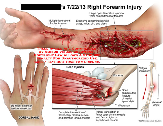 amicus,injury,lacerations,volar,forearm,extensive,contamination,grass,twigs,dirt,glass,open,lacerative,compartment,3rd,finger,extensor,tendon,transected,humerus,open,comminuted,fracture,medial,epicondyle,olecranon,transection,flexor,carpi,ulnaris,digitorum,superficialis,muscle,radialis,palmaris,longus,valgus,instability