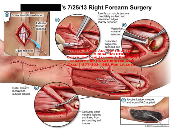 amicus,surgery,right,forearm,dorsal,laceration,extended,extensor,tendon,repaired,reducedglass,torn,flexor,muscle,avulsed,macerated,debrided,vegitative,material,dislocated,fragments,Jacob