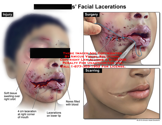 amicus,injury,facial,lacerations,swelling,soft,tissue,mouth,orbit,lower,lip,nares,sutures,surgery,scarring
