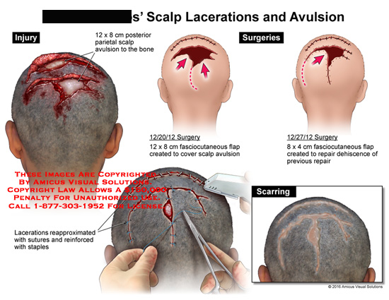 amicus,surgery,scalp,lacerations,avulsions,sutures,staples,fasciocutaneous,flap,dehiscence,repair,scarring