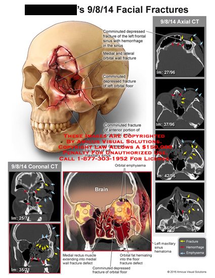 amicus,injury,facial,radiology,ct,axial,coronal,fracture,comminuted,depressed,frontal,sinus,hemorrhage,medial,lateral,orbital,wall,zygomatic,arch,maxillary