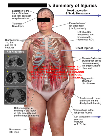amicus,injury,laceration,head,posterior,scalp,hematoma,traumatic,brain,exacerbation,facet,joint,hypertrophy,shoulder,tenderness,bruising,decreased,rom,chest,rib,abrasion,extensive,bruising,soft,tissue,wall,aggrevation,lumbar,disc,disease,base,dorsum,digit,psoas,t12,l4,retroperitoneal,fat,straining,region,adrenal,gland,hemorrage,contusion