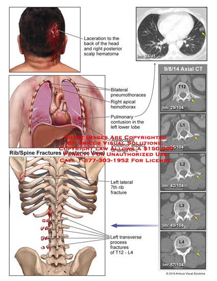 amicus,injury,laceration,head,posterior,scalp,hematoma,bilateral,pneumothoraces,apical,hemothorax,pulmonary,lower,lobe,atelectasis,lung,lateral,rib,transverse,t12,l4,ct