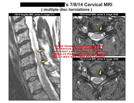 amicus,radiology,mri,cervical,multiple,disc,herniation
