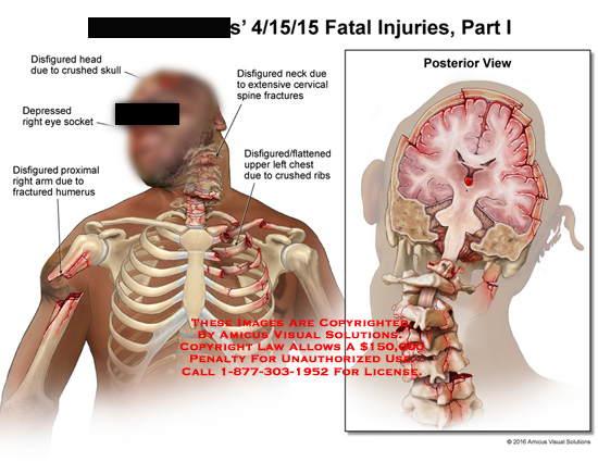 amicus,injuries,fatal,head,disfigured,crushed,skull,depressed,eye,socket,proximal,arm,fractured,humerus,flattened,upper,chest,ribs,posterior,cervical,spine,fracture