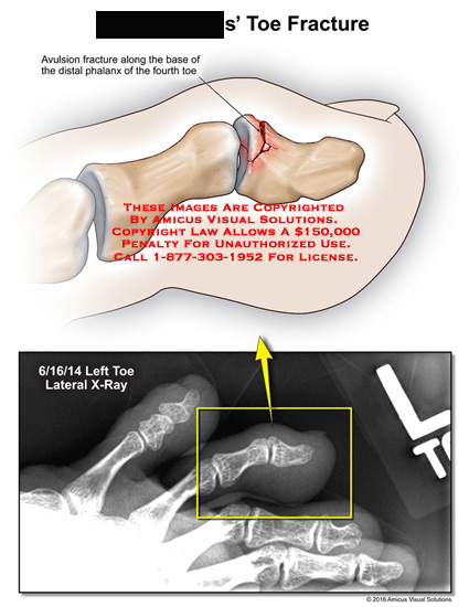amicus,injury,radiology,x-ray,toe,fracture,avulsion,base,distal,phalanx