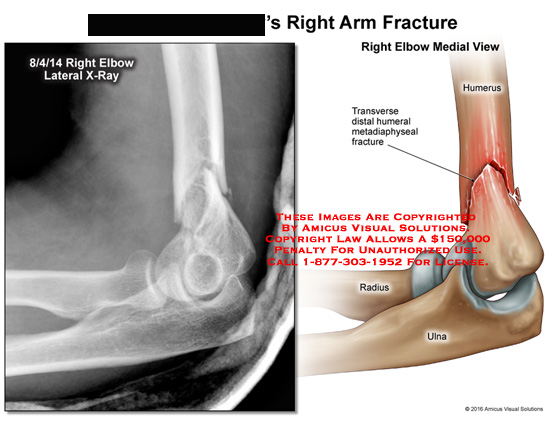 amicus,injury,arm,radiology,x-ray,fracture,elbow,lateral,transverse,distal,humeral,humerus,ulna,radius,metadiaphyseal