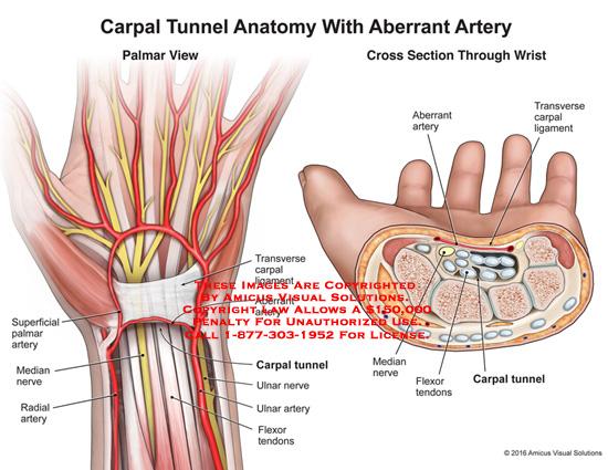 Carpal Tunnel Anatomy With Aberrant Artery