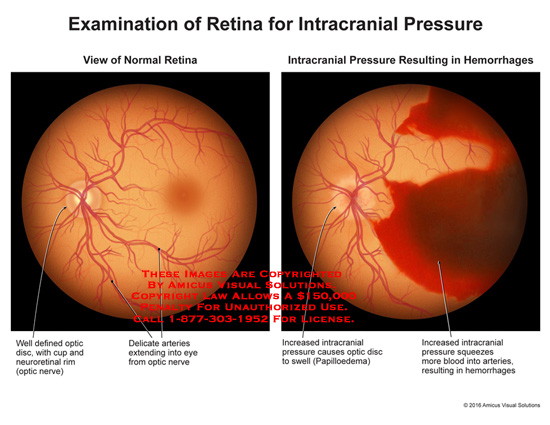 amicus,injury,eye,retina,intracranial,pressure,normal,hemorrhage,optic,disc,cup,neuroretinal,rim,delicate,arteries,nerve,swell,squeeze,blood
