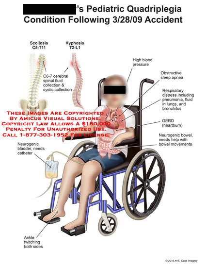 amicus,injury,quadriplegia,pediatric,condition,scoliosis,kyphosis,cerebral,spinal,fluid,collection,cystic,neurogenic,bladder,catheter,ankle,twitching,high,blood,pressure,obstructive,sleep,apnea,respiratory,distress,pneumonia,fluid,lungs,bronchitus,gerd,heartburn,neurogenic,bowel,movement,c5,c6,c7,t11,t2,l1