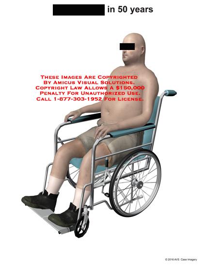 amicus,injury,50,years