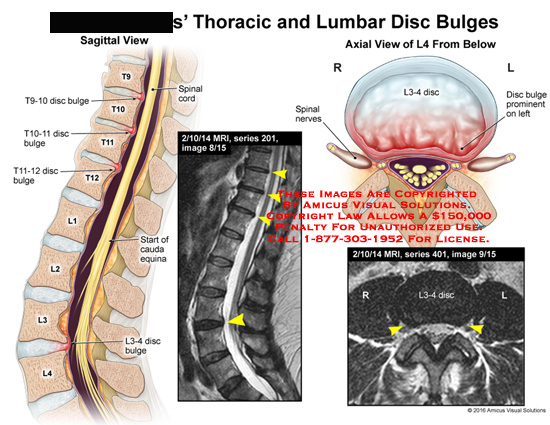 amicus,injury,thoracic,lumbar,disc,bulges,below,prominent,spinal,nerves,cauda,equina,l3,l4,t9,t10,t10,t11,t12,MRI