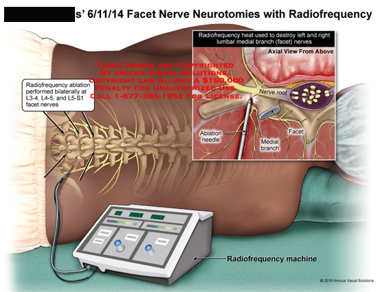 amicus,medical,facet,nerve,neurotomies,radiofrequency,abulation,needle,medial,branch,root,abalation,performed,bilaterally,l3,l4,l5,s1