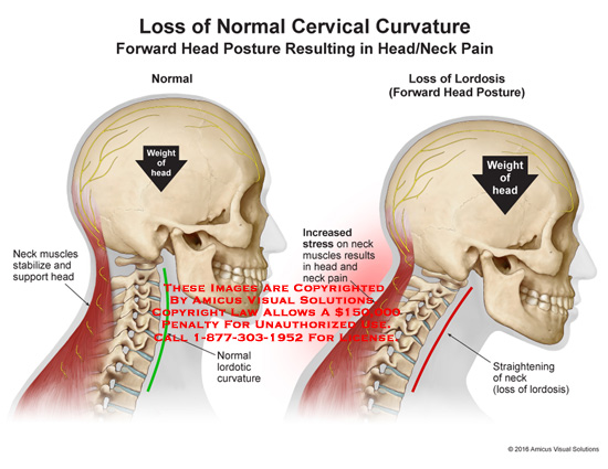 amicus,injury,head,loss,cervical,curvature,forward,posture,resulting,neck,pain,weight,muscle,stabilize,support,stress,back,pain,lordosis
