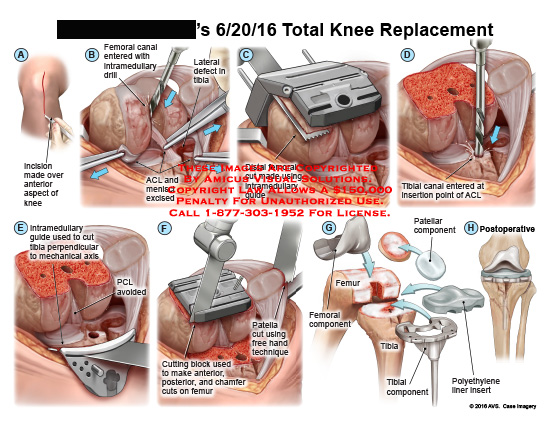 amicus,surgery,knee,replacement,total,incision,femoral,canal,intramedullary,drill,lateral,defect,tibia,acl,menisci,excise,distal,cut,guide,tibial,insertion,perpendicular,mechanical,axis,pcl,avoided,cutting,block,chamfer,patella,free,hand,technique,component,polyethylane,liner,insert,postoperative