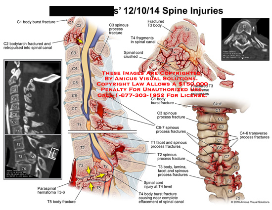 amicus,injury,spine,spinous,process,fracture,body,burst,arch,retropulsed,spinal,canal,crushed,transverse,lamina,facet,effacement,c1,c2,c3,c4,c5,c6,c7,t1,t2,t3,t4,paraspinal,hematoma,t5,t6