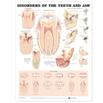 anatchart,chart,teeth,jaw,disorders,tooth,periodontal,disease,dental,caries,abscess,formation,temporomandibular,joint,glandular,problems,impaction,enamel,hypoplasia,fusion,germination,microdontia,macrodontia,toothbrush,abrasion,hypodontia,hyperdontia,pulp,polyp,dens,invaginatus,attrition,erosion,paper,unmounted