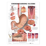 anatchart,chart,ulcers,anatomical,defines,stomach,esophagus,duodenum,layers,cause,types,erosion,acute,perforating,heal,paper,unmounted