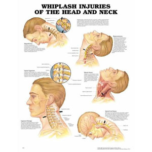 anatchart,chart,whiplash,head,neck,injuries,hyperflexion,hyperextension,spinal,ligaments,damage,muscle,injury,spinal,cord,paper,unmounted