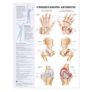anatchart,chart,arthritis,joints,osteoarthritis,oa,rheumatoid,ra,hand,wrist,hip,knee,bone,spurs,narrowing,space,erosion,cartilage,swelling,diseases,fibromyalgia,gout,juvenile,systemic,lupus,erythematosus,bursitis,tendonitis,paper,unmounted