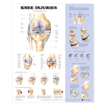anatchart,chart,knee,injuries,anatomy,normal,traumatic,meniscus,tears,symptoms,damaged,menisci,sports-related,ligament,paper,unmounted