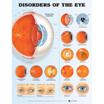 anatchart,chart,eye,disorders,anatomy,optic,disc,blepharitis,conjunctivitis,corneal,ulcers,cataract,vitreous,floaters,retinal,tear,detachment,macular,degeneration,diabetic,retinopathy,melanoma,glaucoma,esotropia,exotropia,paper,unmounted