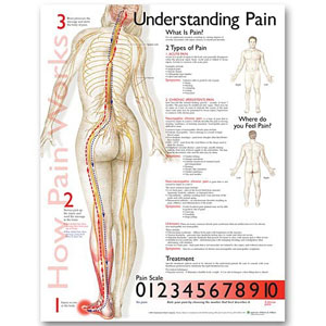 anatchart,chart,pain,types,symptoms,scale,patients,level,location,prevention,treatment,paper,unmounted