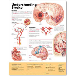 anatchart,chart,stroke,understanding,ischemic,hemorrhagic,plaque,formation,thrombus,embolus,intracerebral,hemorrhage,arteriovenous,malformation,avm,circle,of,willis,aneurysm,subarachnoid,arterioles,microaneurysm,brain,functional,areas,roles,body,risk,factors,neurological,deficits,paper,unmounted