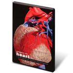 anatchart,software,heart,anatomy,pathology,cholesterol,buildup,atherosclerosis,hypertension,blood,vessel,damage,stroke,ventricular,hypertrophy,angina,myocardial,infarction,attack,congestive,failure,mitral,valve,prolapse,cd,3D,computer