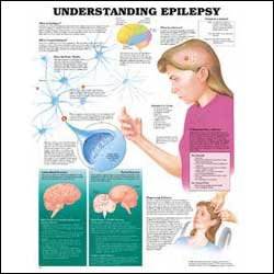 anatchart,chart,study,epilepsy,brain,seizure,neuron,nerves,laminated