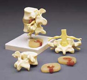 anatchart,model,lumbar,herniation,herniated,vertebrae,intervertebral,disc,central,dorsal,dissectable,part