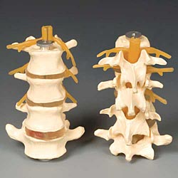 anatchart,model,spine,lumbar,herniated,disc,nerve,root,dissectable,part,spinal,cord