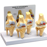 anatchart,model,knee,joint,osteoarthritis,cartilage,spur,erosion